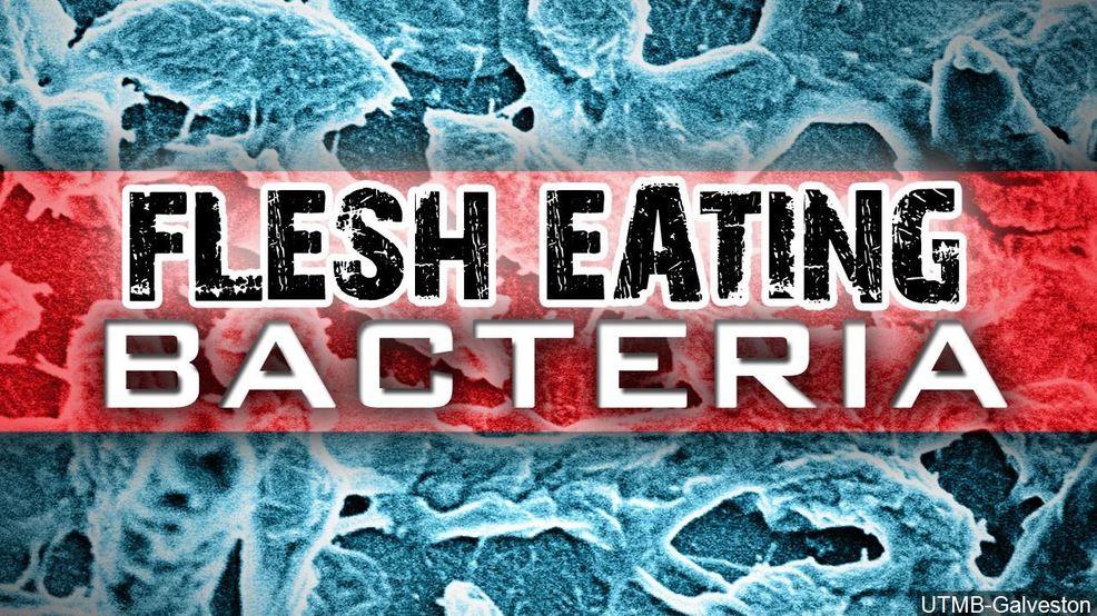 Flesh-eating bacteria kills Florida woman | WPEC
