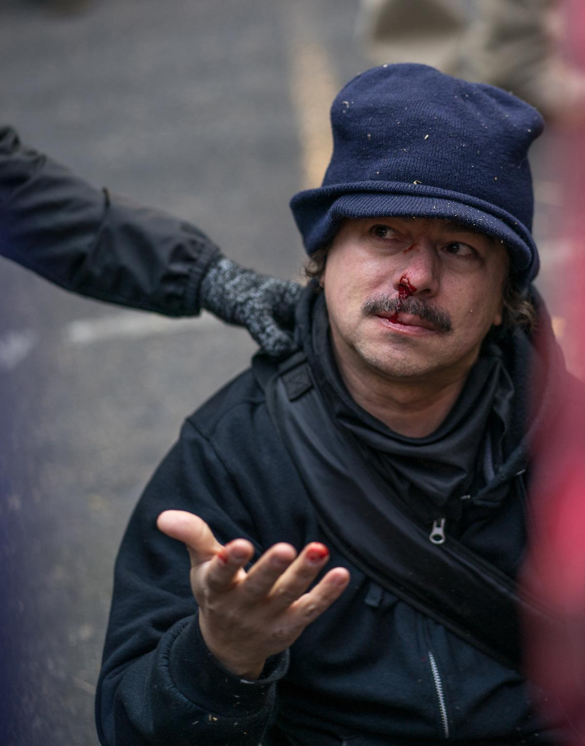 A man rests on the ground after being knocked over by Tusitala Toese, a member of Patriot Prayer who was later detained by the police. A demonstration by the alt-right, conservative group Patriot Prayer began at 1 p.m. in Portland, Ore., on Saturday, December 9, to protest the homicide acquittal of Jose Ines Garcia Zarate, the undocumented immigrant who accidentally shot and killed Kate Steinle in San Francisco. The demonstration attracted a large crowd of counter-protesters and members of Antifa, and heated exchanges and several scuffles occurred between the two groups throughout the afternoon until the event's conclusion at 4 p.m., with at least one member of Patriot Prayer being detained by police and several demonstrators being injured. The rally began in Portland's Terry Schrunk Plaza and developed into a march along the Tom McCall Waterfront Park before ending at Terry Schrunk Plaza again. Photo by Kit MacAvoy, Oregon News Lab