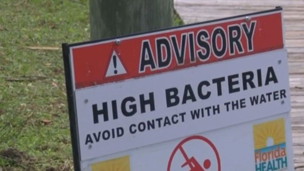 A Rash of Rashes: Alerting clothing customers to potential skin irritation