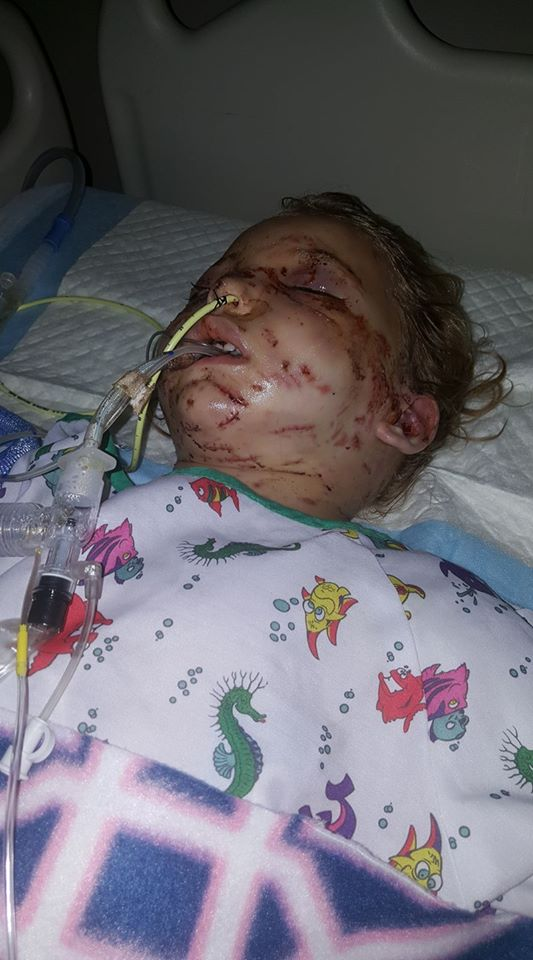 A little girl in Springfield recovers after being attacked by pit bulls. (Prayers for Mirra Kay Neal/Facebook)