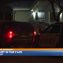 Man shot in the face overnight in Kalamazoo