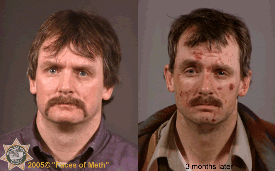 "Before and after.The photo was part of a 2005 project called ""Faces of Meth"" put on by the Multnomah County Sheriff's Office to help raise awareness about the drug's dangers.  (Photo and info courtesy of the Multnomah County Sheriff's Office)"