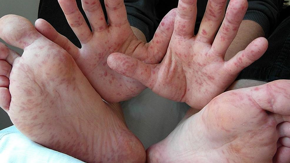 hand foot and mouth treatment for itching