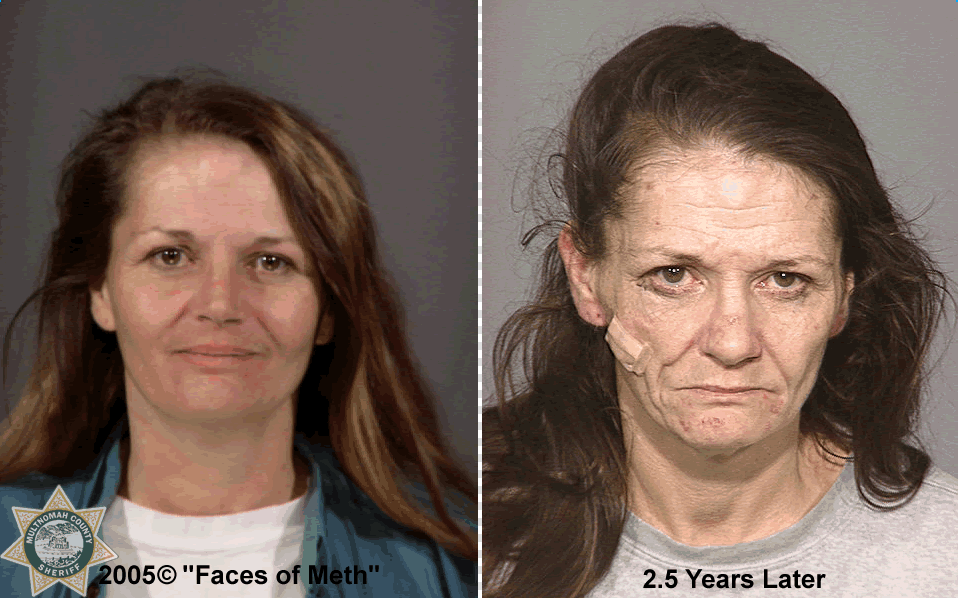"Before and after. The photo was part of a 2005 project called ""Faces of Meth"" put on by the Multnomah County Sheriff's Office to help raise awareness about the drug's dangers.  (Photo and info courtesy of the Multnomah County Sheriff's Office)"